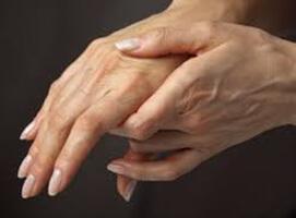 Octubre, Mes de la Artritis Reumatoidea