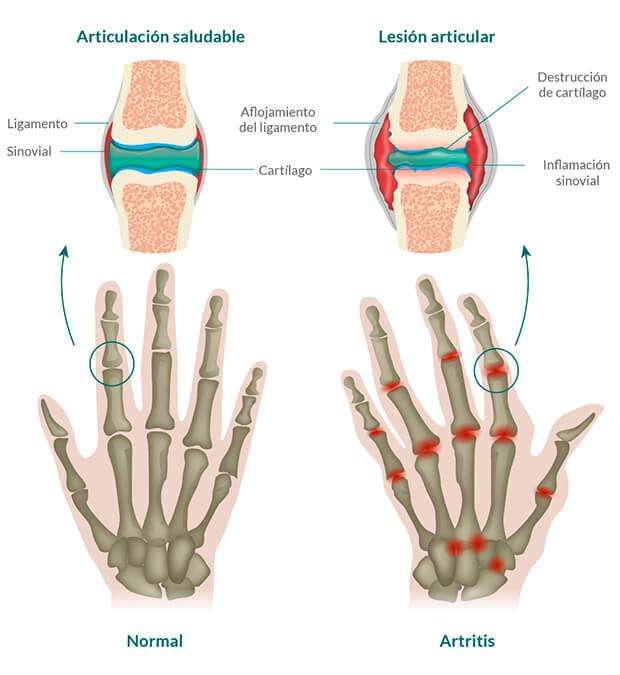 artritis juvenil idiopática