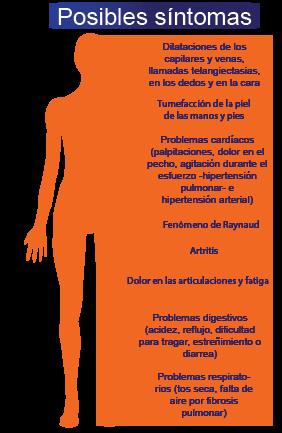 esclerodermia-sintomas-01-01