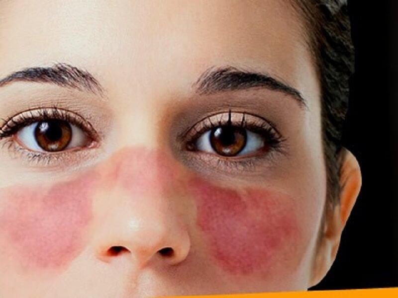 Lupus Eritematoso Sistémico Juvenil - Reuma ¿Quién Sos?