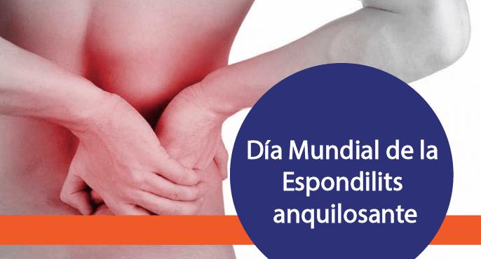 Hoy es el día Mundial de la espondilitis anquilosante