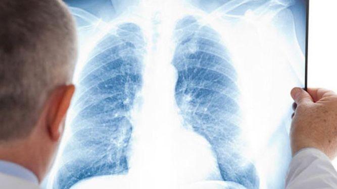 Comorbilidades de la Artritis Reumatoidea (AR) – Condiciones respiratorias crónicas