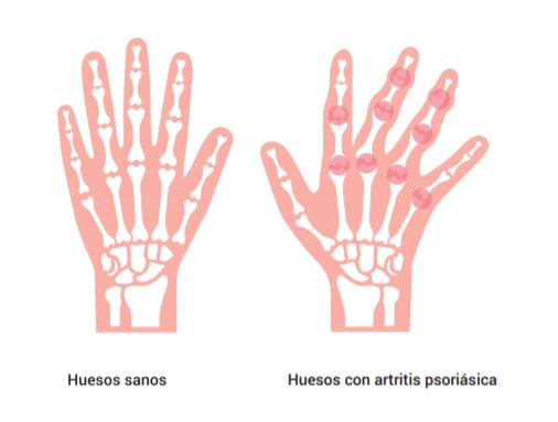Artritis Psoriásica (un resumen)