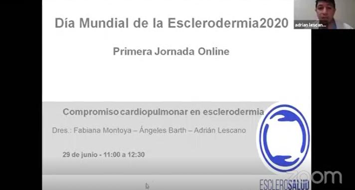 Compromiso cardiopulmonar en esclerodermia – Andrés Lescano