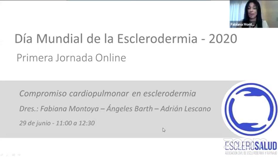 Compromiso cardiopulmonar en esclerodermia – Fabiana Montoya